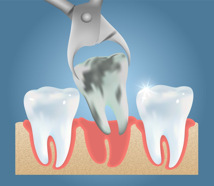 Tooth Extractions - Suburban Dental - Germantown, MD