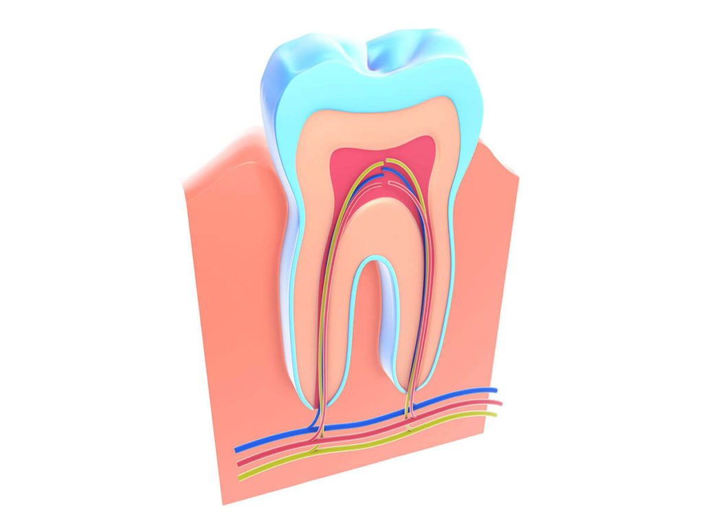 illustration of a tooth's root structure where a root canal is needed