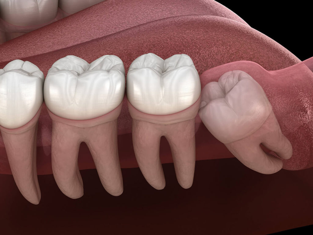 illustration of an impacted wisdom tooth that requires removal